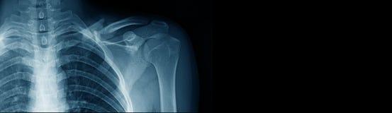 横幅在蓝色口气的肩膀X-射线 库存照片