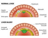 正常肝脏和肝脏损伤 免版税图库摄影