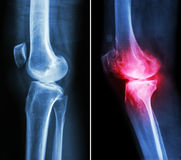 正常膝盖和骨关节炎膝盖 图库摄影