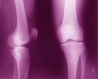 正常膝盖x光芒 免版税库存照片