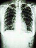 正常human胸口 库存图片