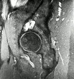 正确的熟悉内情的骨关节炎病理学mri检查 免版税库存图片