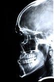 正面X-射线 库存图片