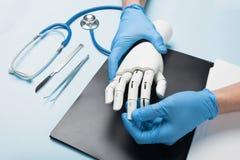 残疾的机械义肢胳膊 与医生的咨询 库存照片