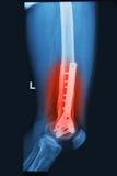 残破的人力大腿X射线辐射与植入管的图象 库存照片