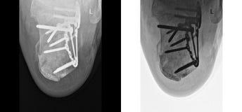 残破的脚跟X-射线固定与螺丝和板材,脚痛苦在医生办公室 免版税库存照片