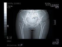 残破的骨盆扫描 库存图片