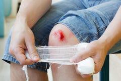 残破的出血膝盖 免版税图库摄影