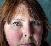 残破的有之心的妇女 免版税图库摄影
