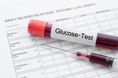 每日血糖测试和样品血液在管和注射器 免版税库存图片