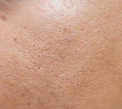 毛孔和油腻在表面年轻亚洲人面孔皮肤长期不保重 免版税库存照片