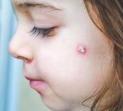 水痘斑点细节面对斑点婴孩正面面颊的关闭 库存图片