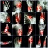 汇集X-射线多骨折 免版税库存照片