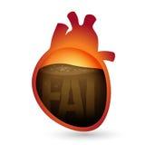 油脂在心脏 免版税图库摄影
