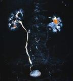 泌尿系统CT 库存照片