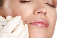 注射一种化妆治疗的年轻美好的模型 免版税图库摄影
