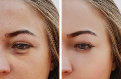 注视女孩袋子在治疗化妆用品做法前后的眼睛撤除下 免版税图库摄影
