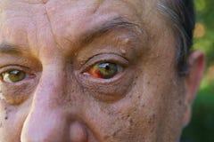 注视,血战对眼睛,疣和孔头 免版税库存照片