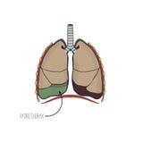 流体的储积在肺的胸腔的 图库摄影