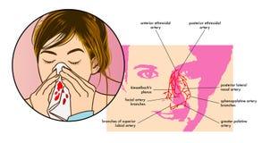 流鼻血症状 图库摄影