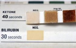 测试尿 免版税库存图片