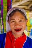 清莱,泰国- 2018年2月01日:关闭微笑与可怕的牙的未认出的妇女属于卡伦 库存图片