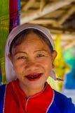 清莱,泰国- 2018年2月01日:关闭微笑与可怕的牙的未认出的妇女属于卡伦 库存照片