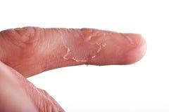 湿疹手指 库存照片