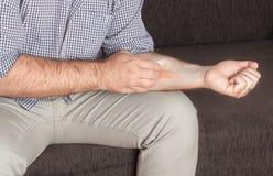 湿疹,医疗 免版税库存照片