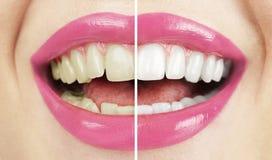 漂白。 牙齿保护。 健康妇女白色牙。 免版税库存照片