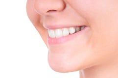 漂白的牙。 牙齿保护 免版税库存照片