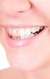 漂白的牙。 牙齿保护 免版税库存图片