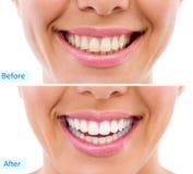 漂白-漂白的治疗、妇女牙和微笑,在a前 免版税库存照片