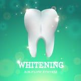漂白1的牙 库存例证