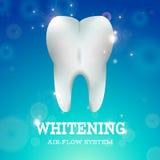 漂白1的牙 向量例证