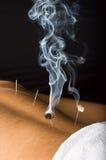 灼烧的男性moxa患者 免版税库存图片