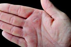 烧伤在手边造成的水泡 库存图片