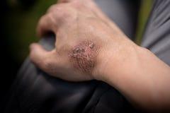 烧伤形式热的蒸汽,在图片这是关于一个星期,并且皮肤现在开始落下  免版税库存照片