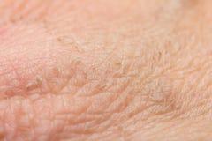 烧伤踪影在皮肤的 免版税库存照片