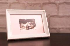 照片在框架的超声波图象在桌上 r 免版税库存照片