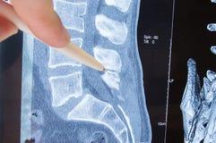 照片MRI腰骶的脊椎病理学 在脊椎腰骶的MRI su的图象可能的病理学或疾病表明的放射学家  图库摄影