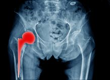 熟悉内情的替换X-射线 库存照片