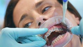 牙医在括号安装弧 影视素材