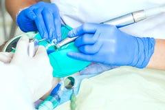 牙医工作的特写镜头 免版税库存照片