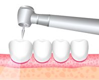 牙医牙齿治疗,牙科的工具 查询 牙痛,钻井的牙的治疗 也corel凹道例证向量 库存例证