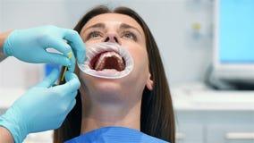 牙医设施括号 影视素材
