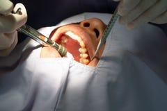 牙提取的麻醉由牙医牙科在医院 库存照片