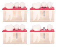 牙插入物设计 免版税库存照片