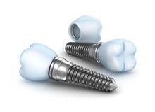 牙插入物,有针的冠在白色 免版税库存图片
