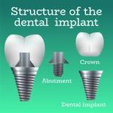 牙插入物结构 皇族释放例证